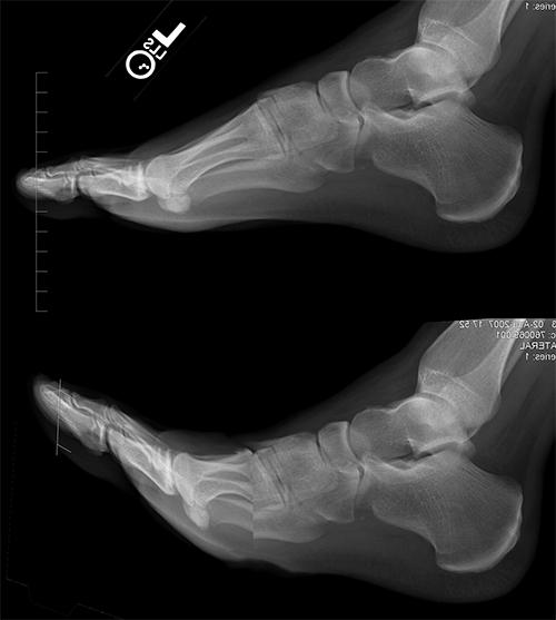 foot-xray01