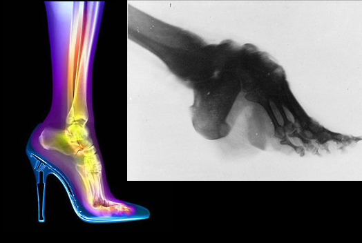 high-heel-xray-comparison